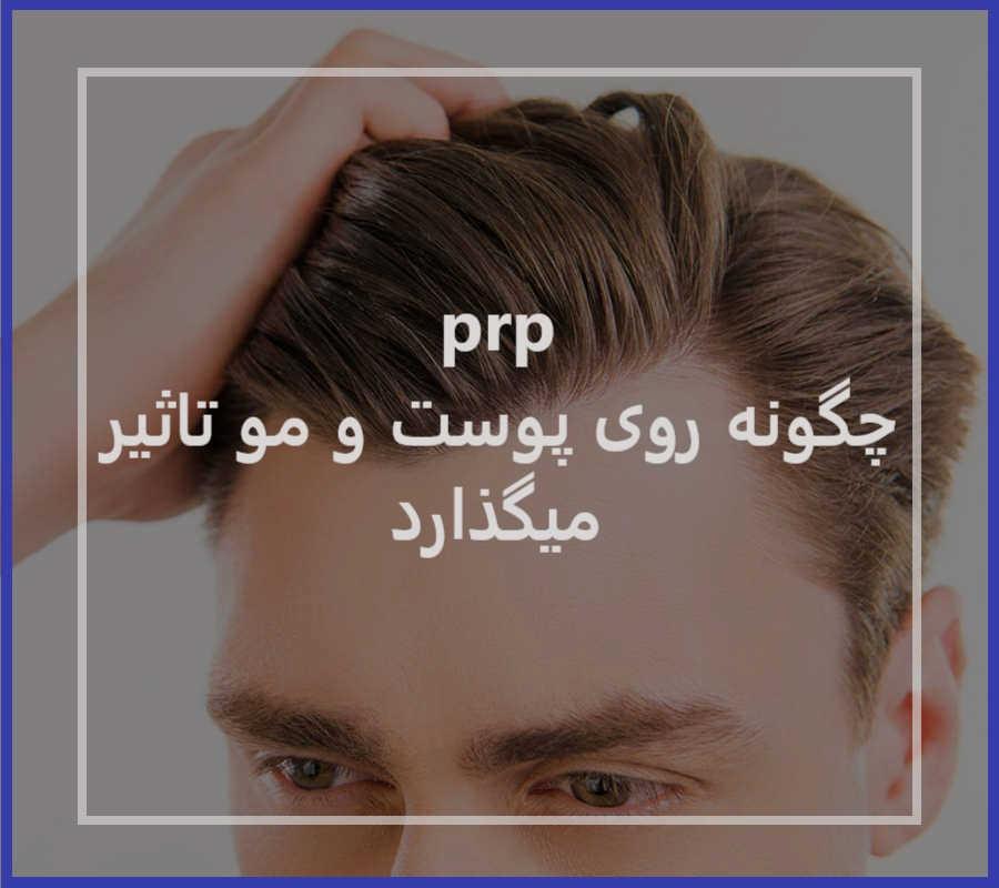 تاثیر prp روی پوست و مو