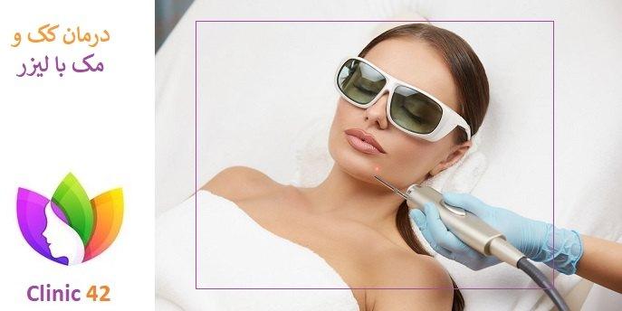 عوارض درمان کک و مک با لیزر