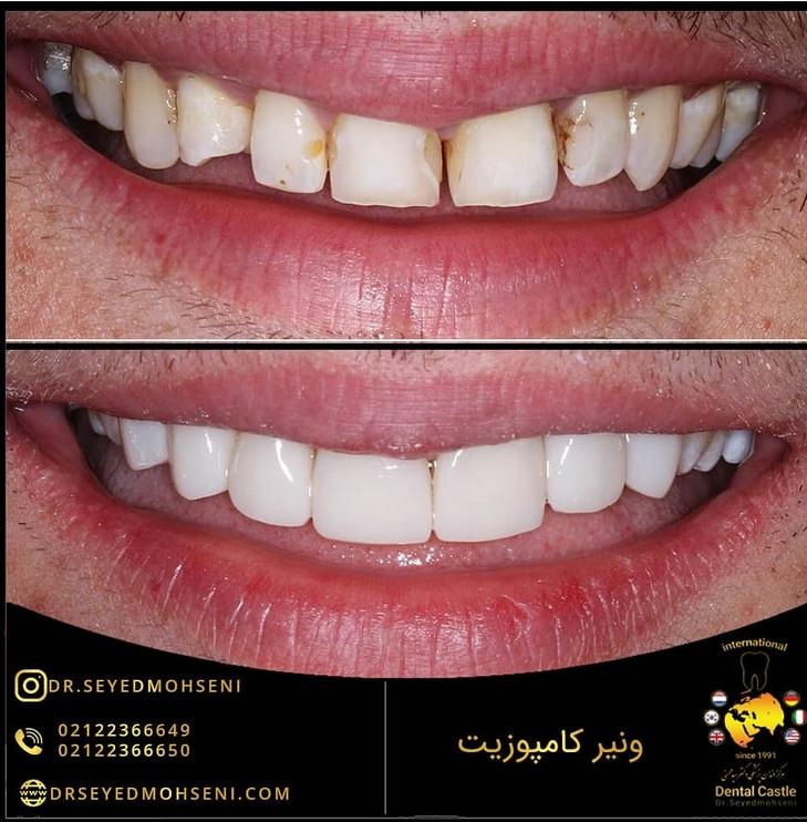 عکس قبل و بعد ونیر کامپوزیت دندان