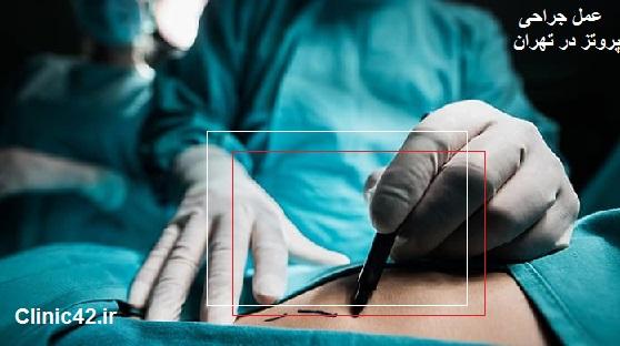جراحی پروتز سینه در تهران