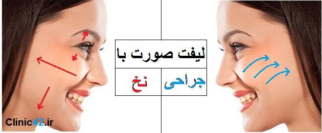 تفاوت جراحی لیفت صورت با لیفت با نخ