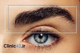 میکروپیگمنتیشن و بیلدینگ یکی از خدمات کلینیک زیبایی پونک است که با بهترین قیمت انجام میشود