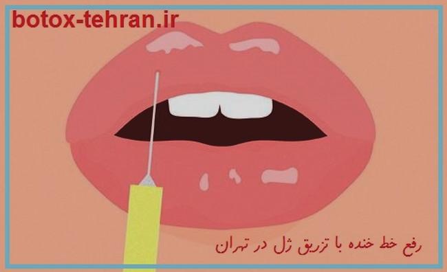 رفع خط خنده با تزریق ژل بوتاکس در تهران