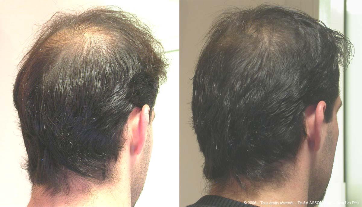 بهترین روش کاشت مو و رویش دوباره مو با مزوتراپی و پی ار پی