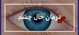 درمان خال چشم