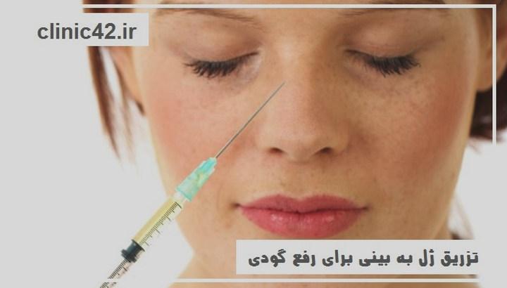 تزریق ژل به بینی برای رفع گودی