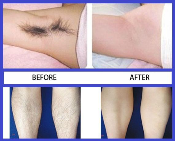 دستگاه لیزر مو بدون درد