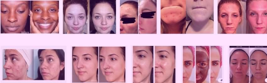 ماسک صورت قبل و بعد