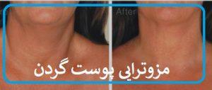 مزوتراپی پوست گردن برای شلی و افتادگی پوست