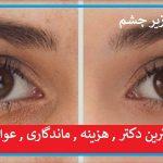 درمان های گودی سیاهی و کبودی زیر چشم ; فیلر , پلاسما جت ,بوتاکس
