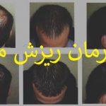 درمان ریزش مو با prp و لیزرتراپی