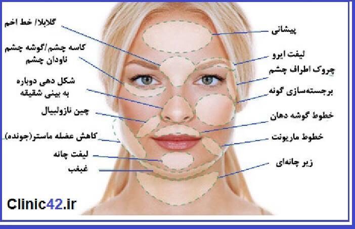 لیفت صورت چیست و چه نقاطی لیفت میشوند و عوارض عمل جراحی لیفت صورت چیست ؟