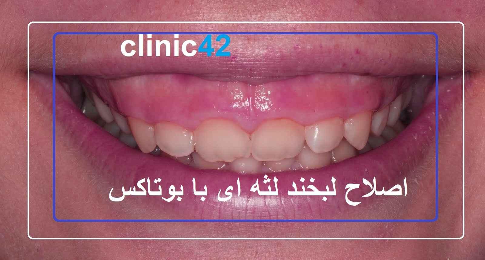 لبخند لثه ای درمان با بوتاکس