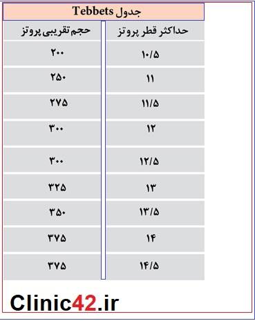 جدول پروتز سینه