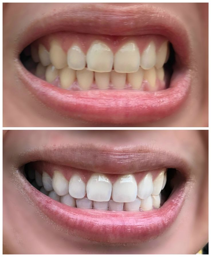 عکس قبل و بعد از بلیچینگ