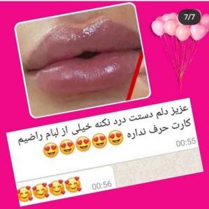 نظرات درباره تزریق ژل لب در تهران