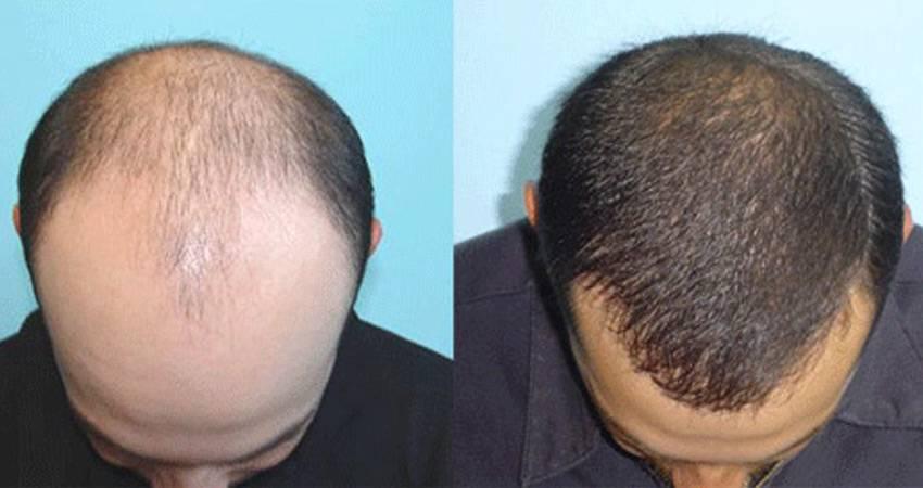 کاشت مو و مزوتراپی در تهران