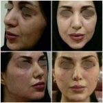 لیفت با نخ در تهرانپارس، روشی برای درمان پیری پوست