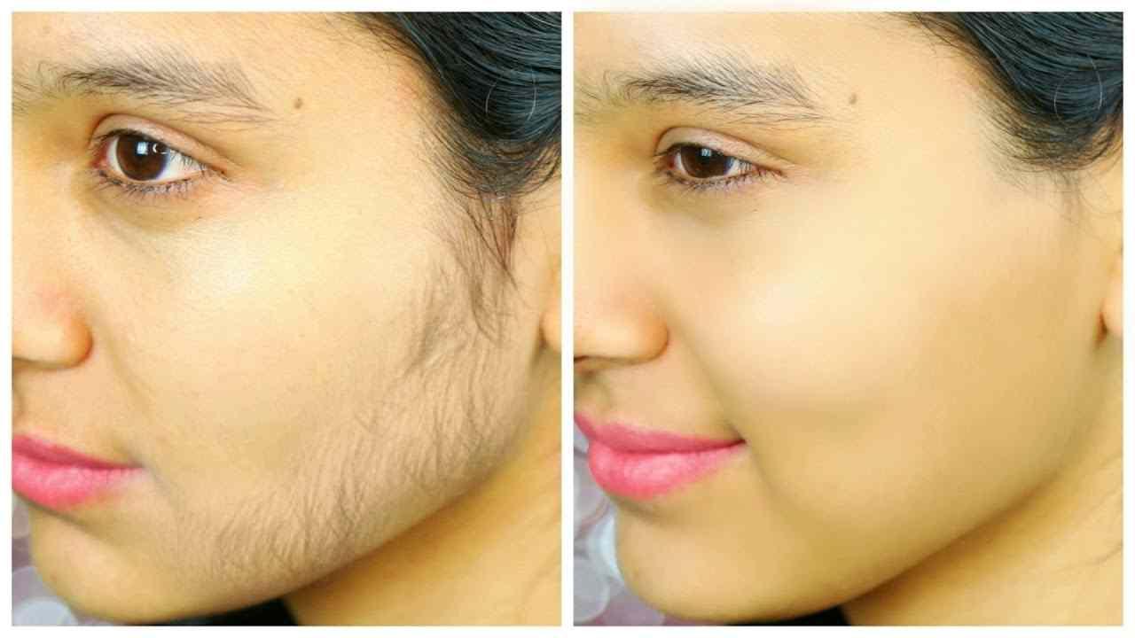 قبل و بعد از لیزر موهای زائد