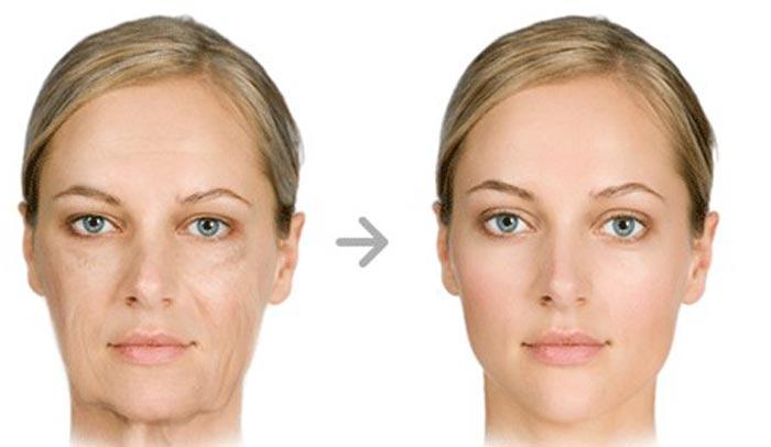 زوایه سازی صورت با تزریق چربی