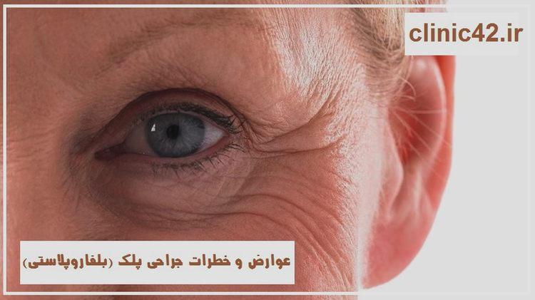 عوارض و خطرات جراحی پلک