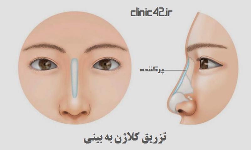 تزریق کلاژن به بینی چگونه است؟