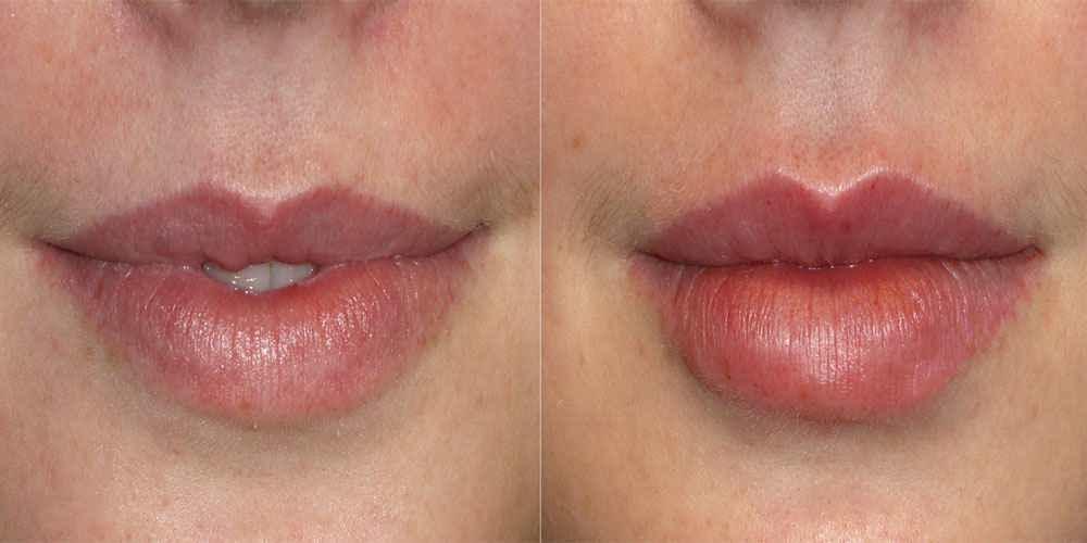 تزریق چربی به لب قبل و بعد