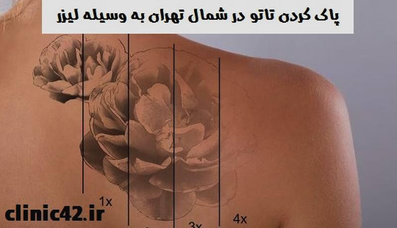 پاک کردن تاتو در شمال تهران به وسیله لیزر