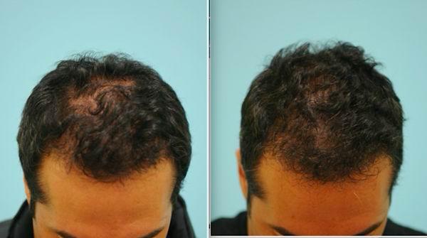 درمان ریزش مو با لیزرتراپی