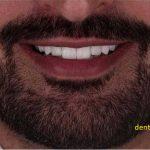 دندان های سفید و بلیچینگ در تهرانپارس