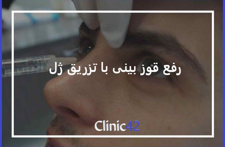 درمان قوز بینی با تزریق ژل