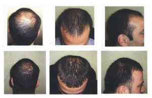 لیزرتراپی تاثیر قبل و بعد