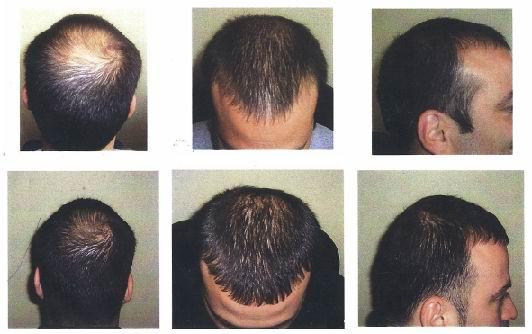 لیزرتراپی برای درمان ریزش مو