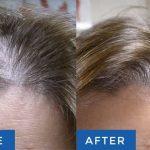 لیزرتراپی برای درمان ریزش مو در کلینیک زیبایی شرق تهران