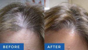 لیزرتراپی قبل و بعد