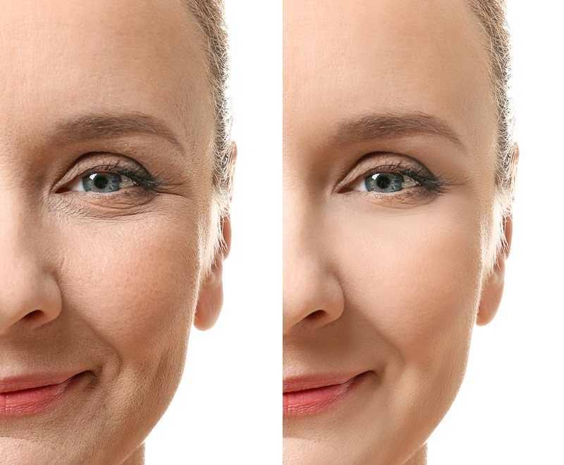 قبل و بعد از تزریق چربی