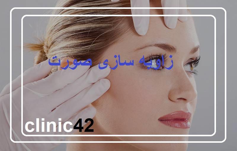 زاویه سازی صورت با تزریق ژل و لیفت با نخ
