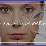 درمان لاغری صورت با تزریق چربی
