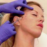 موارد استفاده از بوتاکس و نحوه تزریق بوتاکس