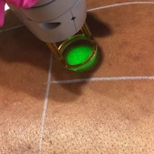 لیزر موهای زائد در کلینیک لیزر زعفرانیه