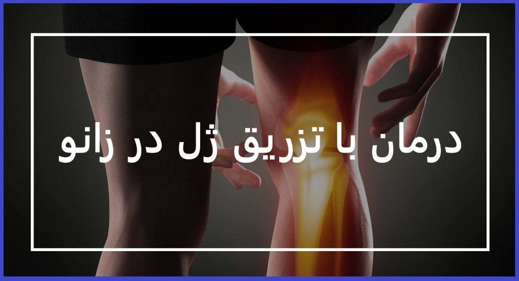 تزریق ژل ساق پا و زانو