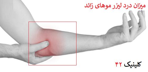 میزان درد هر ناحیه دست پا صورت بیکینی در زمان لیزر