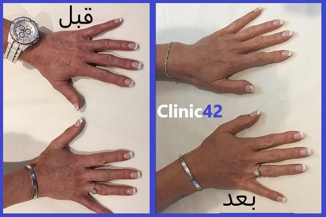 جوان سازی پوست دست