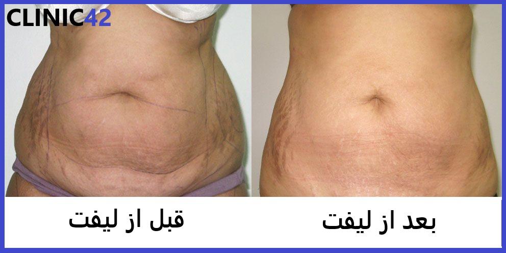 کشیدن پوست شکم بدون جراحی