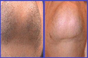 قبل و بعد از لیزر چانه
