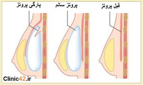 مقایسه پروتز سالم و عوارض پارگی پروتز سینه