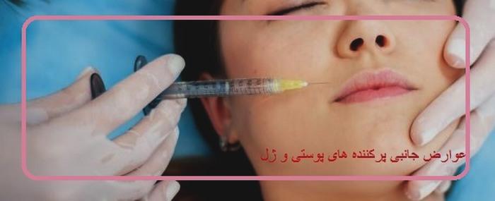 عوارض جانبی پرکننده های پوستی و ژل