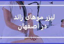 قیمت لیزر موهای زائد اصفهان