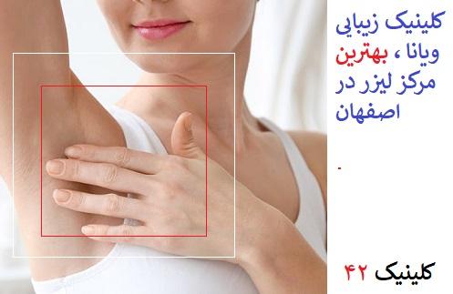 کلینیک ویانا بهترین مرکز لیزر موهای زائد در اصفهان