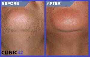 درمان موهای زائد چانه با لیزر